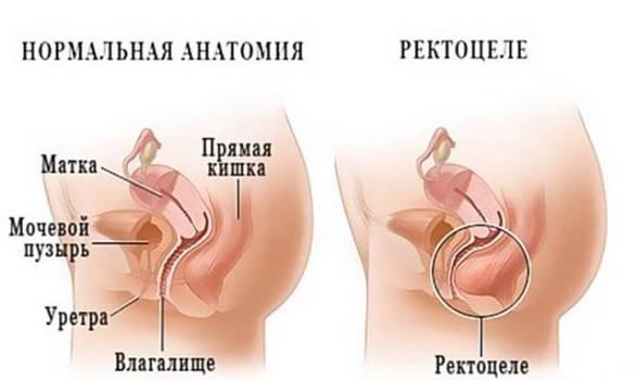uprazhneniya-opushenie-peredney-stenki-vlagalisha