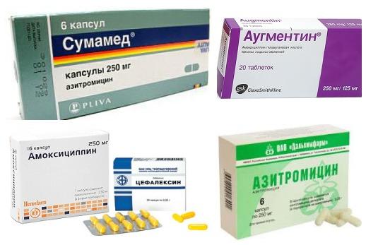 несколько антибиотиков