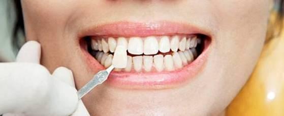 накладной зуб