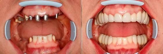 до и после имплантации