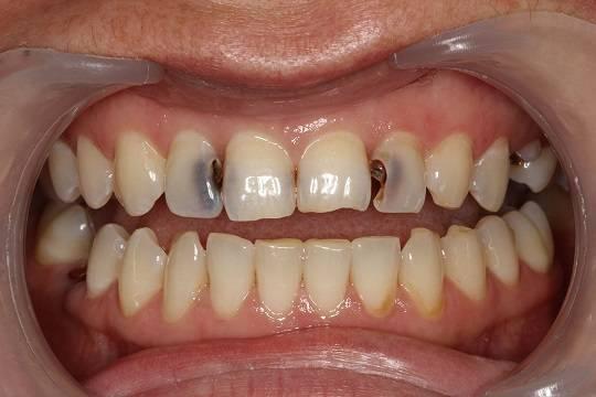 зубной кариес