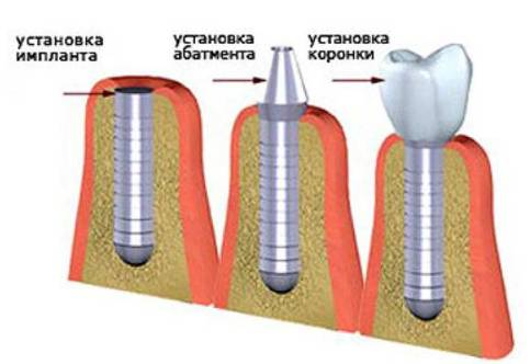 как ставят импланты