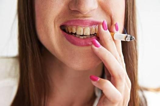 курение признак потемнения зубов