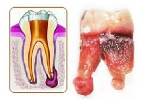 на примере зуба