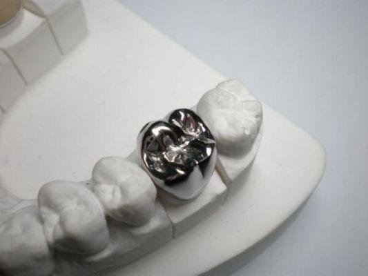 серебряная коронка