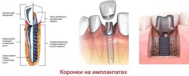 на имплантах