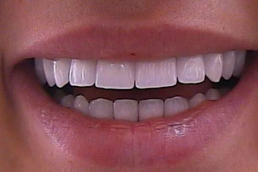 зубы с коронками