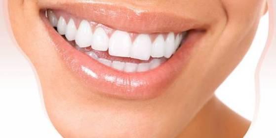 зубы блестят