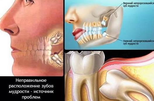 неправильное расположение зуба