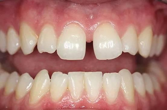 промежутки меж зубами