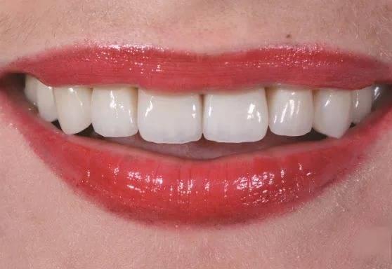 здоровый вид зубов