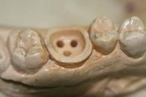 зубной слепок