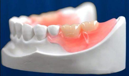 на 2 зуба