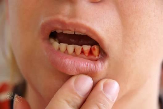 противопоказано больным зубам
