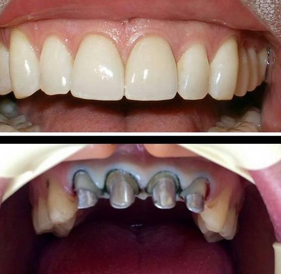 зубы с коронкой и без