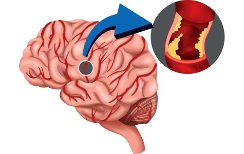 для сосудов мозга