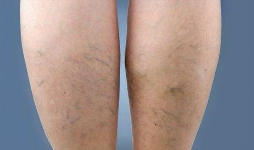 капилляры на ногах