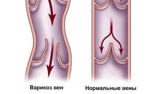 как проявляется варикоз