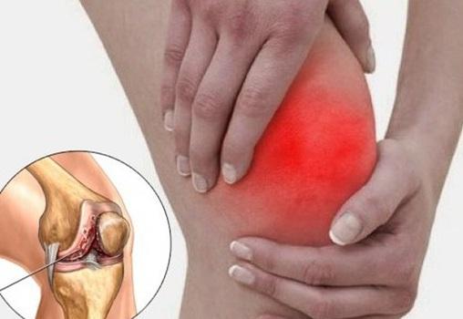 боль в колена
