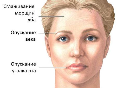 заболевание лицевого нерва