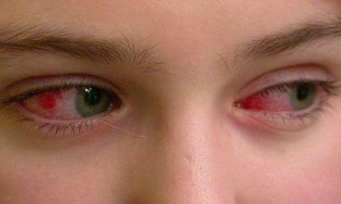 при покраснении глаз