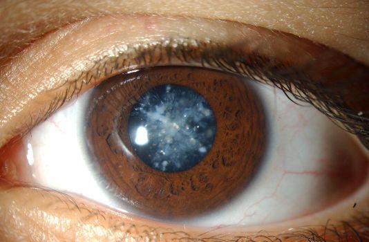 глаз с больным зрачком