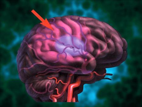 для нормализации работы мозга