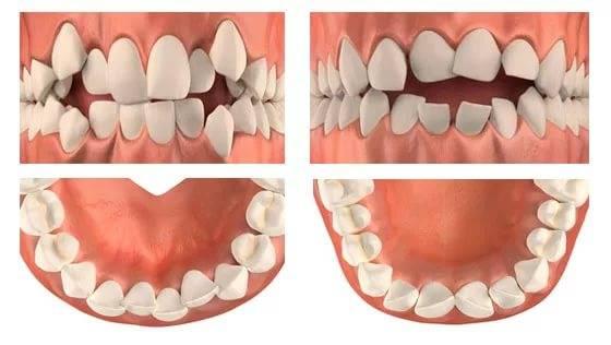 скрученные зубы